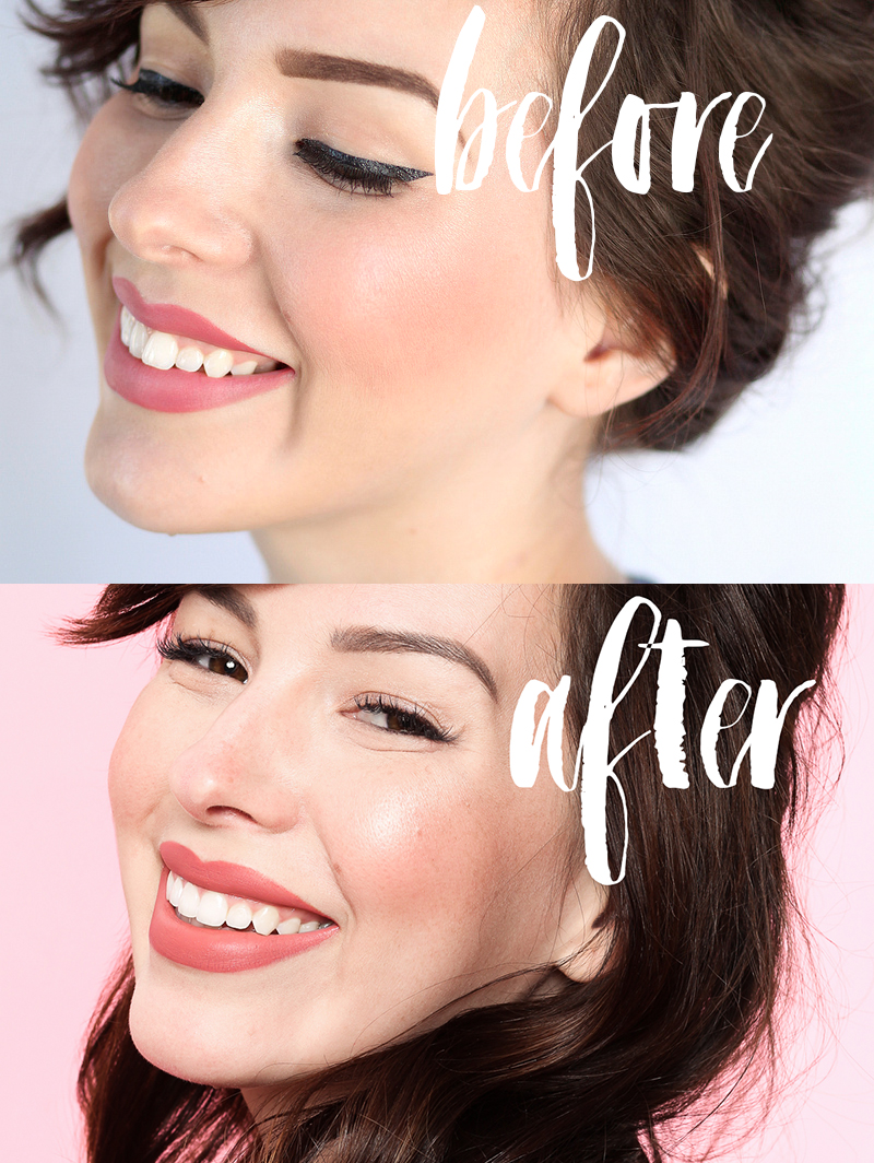 Invisalign Before And After Keiko Lynn Invisalign Treatment